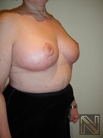 Breast Reduction: Patient 8 - After Image 3