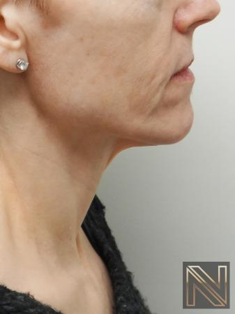 Ultherapy®: Patient 1 - Before and After Image 2