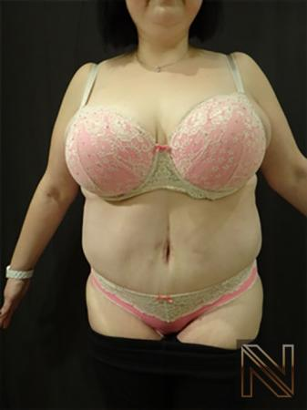 Abdominoplasty: Patient 15 - After Image 1