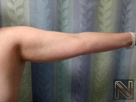 Liposuction: Patient 24 - Before Image 3