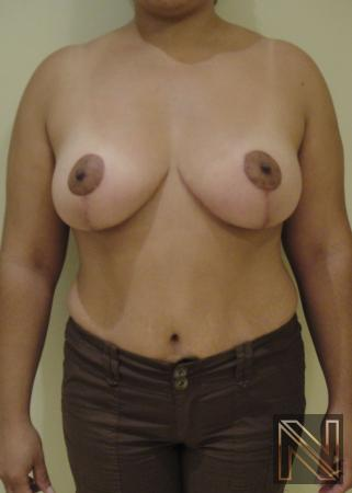 Breast Lift: Patient 6 - After Image 1