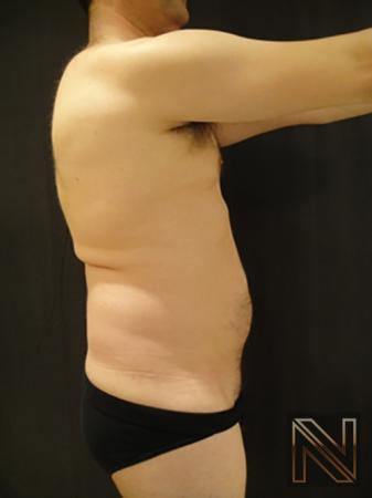 Liposuction: Patient 17 - Before Image 2