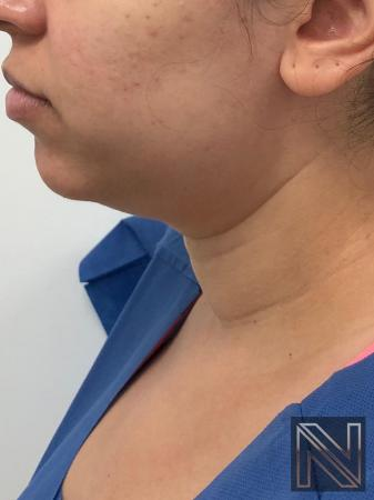 Liposuction: Patient 2 - Before and After Image 4