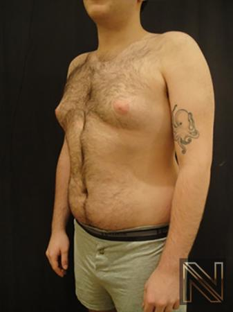 Gynecomastia: Patient 5 - Before Image 2