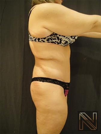 Abdominoplasty: Patient 17 - After Image 3