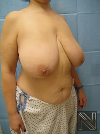 Breast Reduction: Patient 8 - Before Image 3
