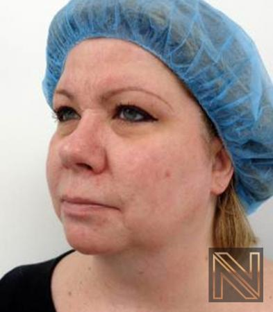 Fractional Resurfacing: Patient 2 - After Image 3