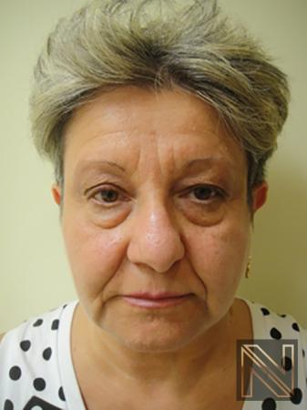 Liquid Facelift: Patient 3 - Before Image
