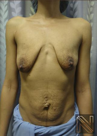 Breast Lift: Patient 4 - Before Image