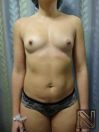 Breast Augmentation: Patient 9 - Before Image 1