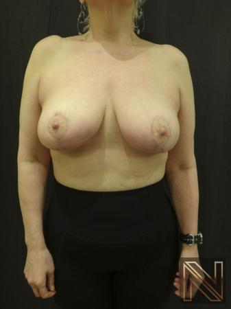 Breast Lift: Patient 3 - After Image 1