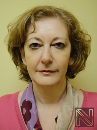 Liquid Facelift: Patient 2 - After Image