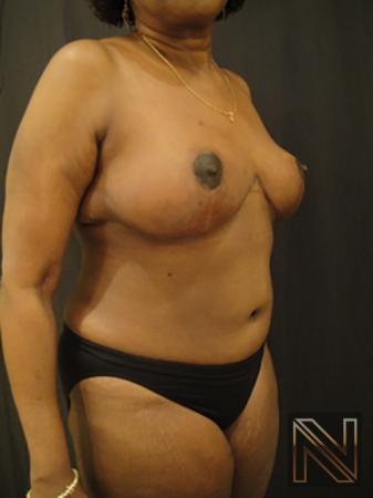 Breast Reduction: Patient 4 - After 3