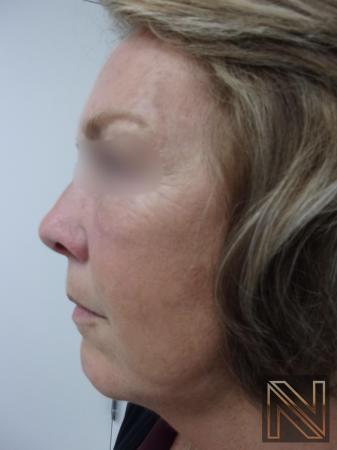 Laser Skin Resurfacing - Face: Patient 1 - After Image 2