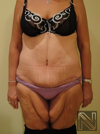 Abdominoplasty: Patient 3 - After Image