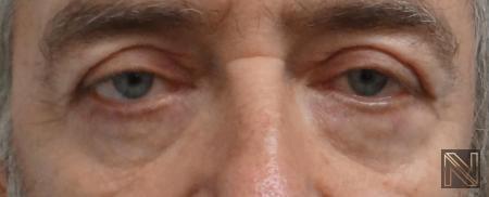 Blepharoplasty: Patient 7 - After Image 3