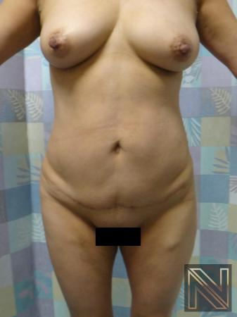 Mini Tummy Tuck: Patient 8 - After Image 1