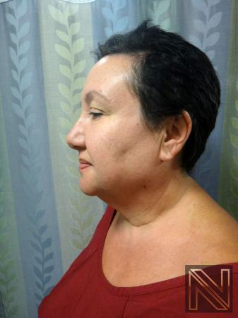 Facelift/Mini Facelift: Patient 6 - Before Image