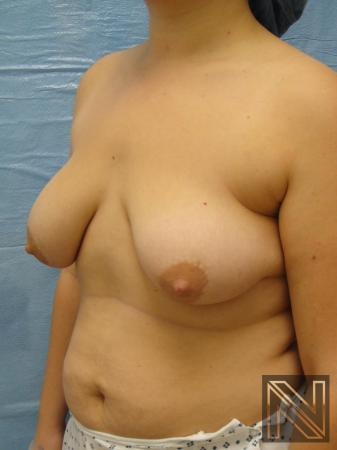 Breast Lift: Patient 10 - Before Image 2