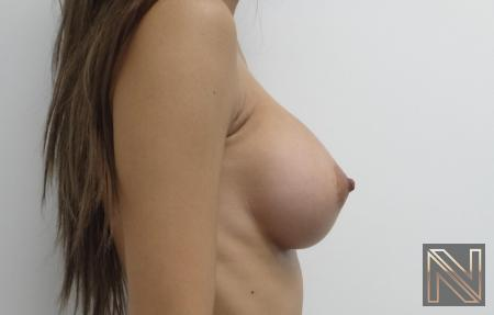 Breast Augmentation: Patient 1 - After Image 5