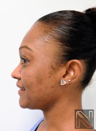 Laser Skin Resurfacing - Face: Patient 4 - After Image 3