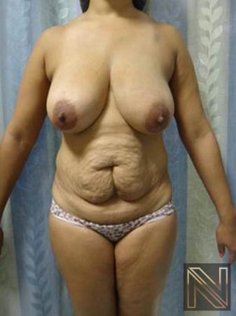 Abdominoplasty: Patient 25 - Before Image 1