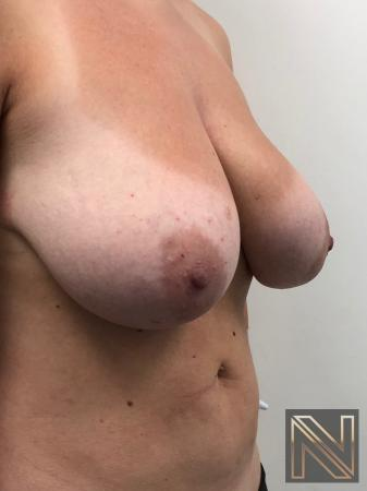 Breast Lift: Patient 8 - Before and After Image 3