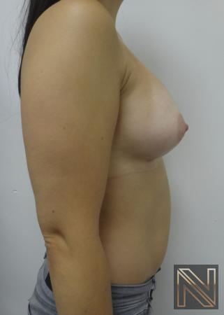 Breast Augmentation: Patient 15 - After Image 4