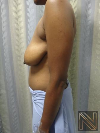 Breast Lift: Patient 2 - Before Image 3