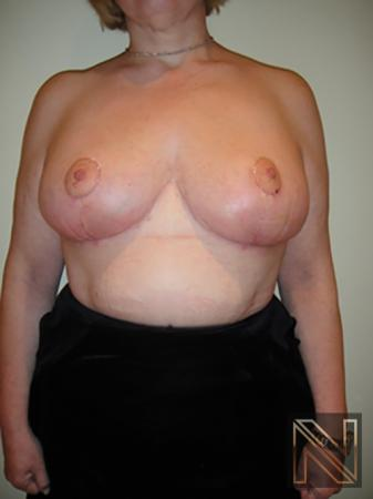 Breast Reduction: Patient 8 - After Image 1