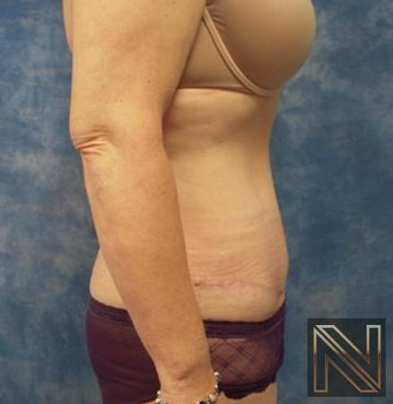 Abdominoplasty: Patient 30 - After Image 2