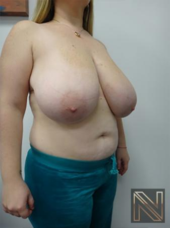 Breast Reduction: Patient 9 - Before Image 3