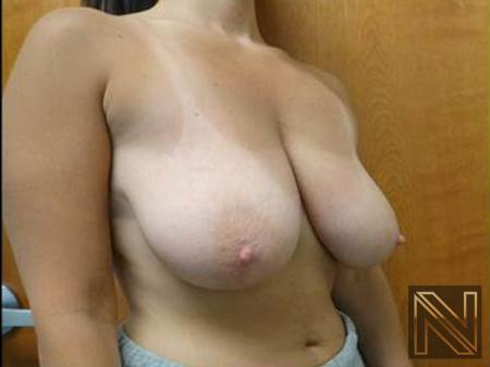 Breast Reduction: Patient 1 - Before Image 2