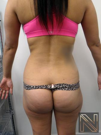 Liposuction: Patient 9 - Before and After Image 4
