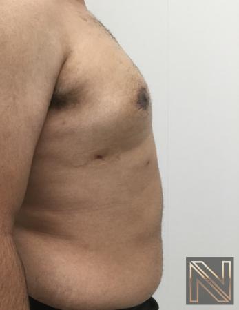 Gynecomastia: Patient 10 - After 3