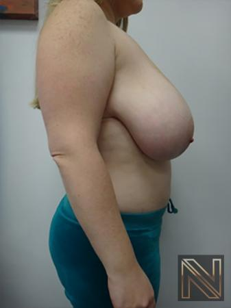 Breast Reduction: Patient 9 - Before and After Image 5