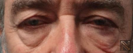 Blepharoplasty: Patient 7 - Before and After Image 3