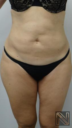 Liposuction: Patient 12 - After 1