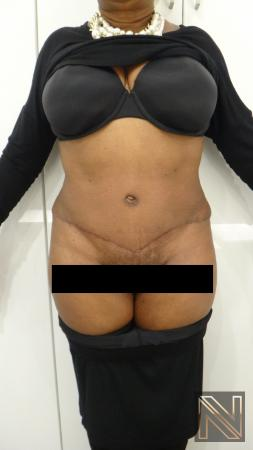Abdominoplasty: Patient 22 - After Image 1