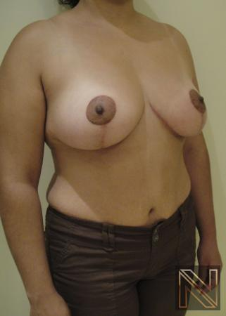 Breast Lift: Patient 6 - After Image 2