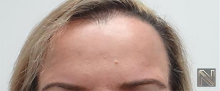 BOTOX® Cosmetic: Patient 2 - After Image 1