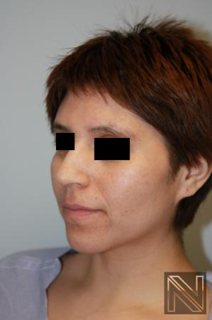 Rhinoplasty: Patient 5 - Before and After Image 3