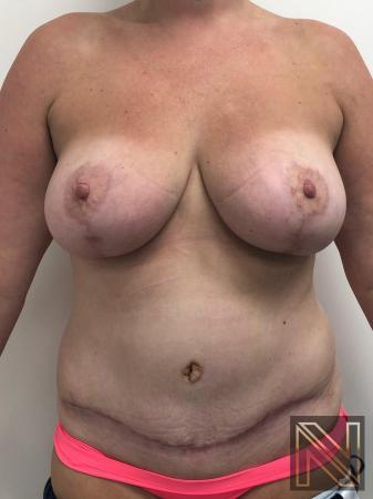 Abdominoplasty: Patient 28 - After Image 1