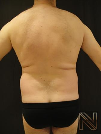 Liposuction: Patient 17 - Before and After Image 3
