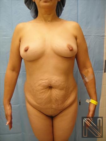 Abdominoplasty: Patient 20 - Before 1