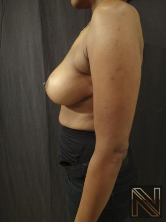 Breast Lift: Patient 2 - After Image 3