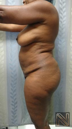 Abdominoplasty: Patient 22 - Before and After 2