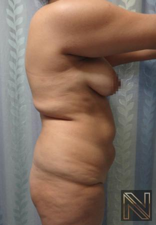 Butt Augmentation: Patient 5 - Before and After Image 3
