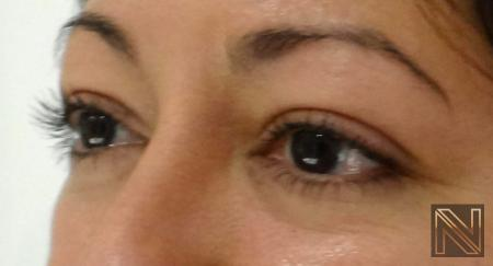 Fillers: Patient 10 - Before Image