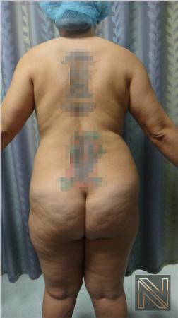 Liposuction: Patient 15 - Before and After Image 4